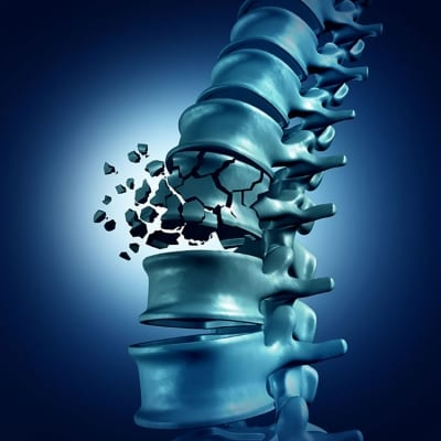 Pain Management for Vertebral Body Fractures and Vertebral Compression Fractures in Lakeland, Florida