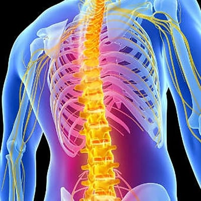 Pain Management for Post-Laminectomy Syndrome in Lakeland, Florida