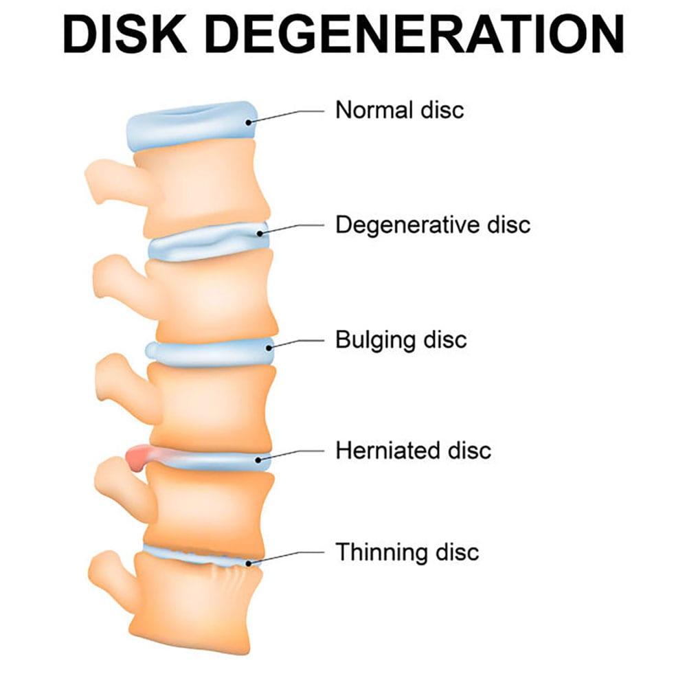 Pain Management for Degenerative Disc Disease in Lakeland, Florida