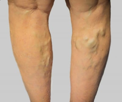 sore varicose veins in leg