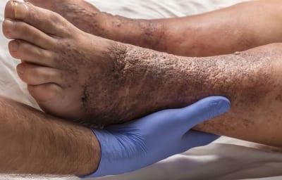 Pain Management of Stasis Dermatitis in Lakeland, Florida