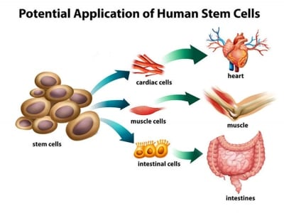 Pain Management with Stem Cell and Regenerative Therapy in Lakeland, Florida