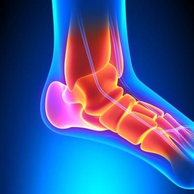 Regenerative Therapy for foot and ankle injuries in Lakeland, Florida