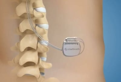 Non-drug pain management with Spinal Cord Stimulation in Lakeland, Florida
