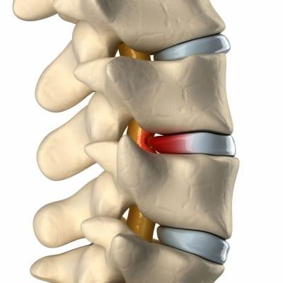 Bulging disc non-surgical treatments in Lakeland, Florida