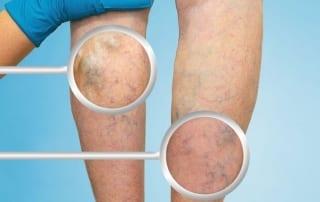 Pain management of chronic venous disease in Lakeland, Florida