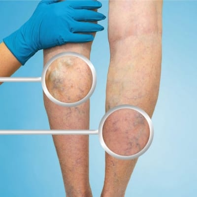 Pain management of chronic venous disease in Lakeland, Florida
