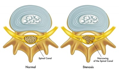 Pain treatment for Spinal Stenosis in Lakeland, Florida