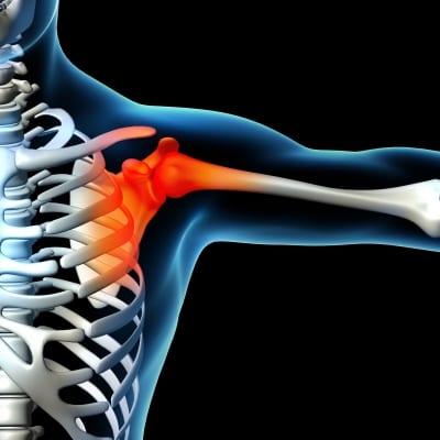 Pain Management for Shoulder Pain in Lakeland, Florida