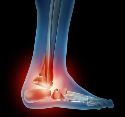 Ankle Injections for pain managment in Lakeland, Florida