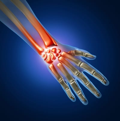 Pain Management Treatments for Carpal Tunnel Syndrome in Lakeland, Florida