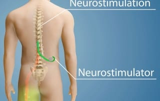 Pain management treatment with spinal cord stimulation for chronic pain in Lakeland, Florida