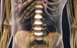 Degenerative Disc Disease in Lakeland, Florida