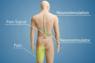 Spinal Cord Stimulator Implant Treatment in Lakeland, Florida