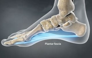 Planter Fasciitis pain in Lakeland, Florida