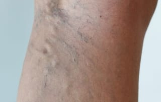 Treating Varicose Veins with Sclerotherapy in Lakeland, Florida