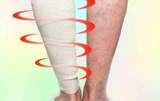 Treating Pain with Compression Therapy in Lakeland, Florida