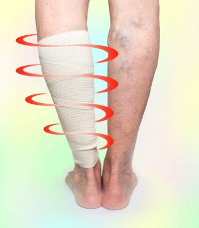 Compression Therapy in Lakeland, Florida