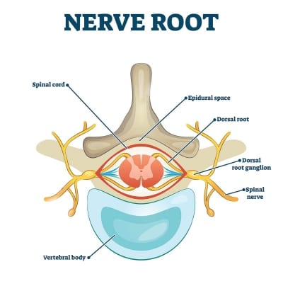 Dorsal root ganglion (DRG) stimulation in Lakeland, Florida