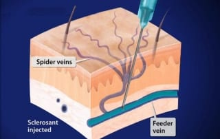 Sclerotherapy pain treatment in Lakeland, Florida