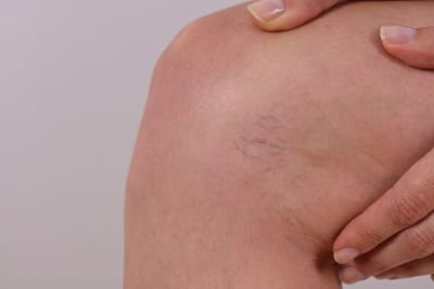 close up of spider vein near the knee
