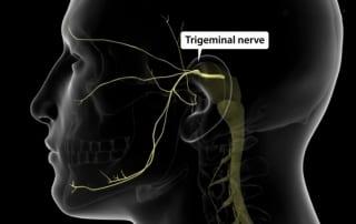Trigeminal Neuralgia in Lakeland, Florida