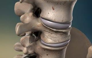 Vertebral Compression Fractures Pain Doctor in Lakeland, Florida