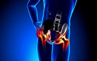 Regenerative Therapy for Hip pain in Lakeland, Florida