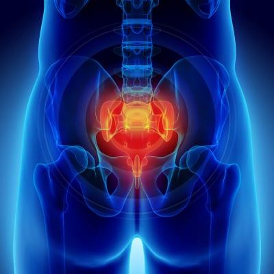 Ganglion Impar Block pain treatment in Lakeland, Florida