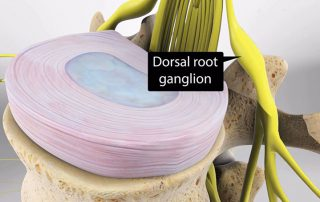 Dorsal Root Ganglion Stimulation Therapy in Lakeland, Florida