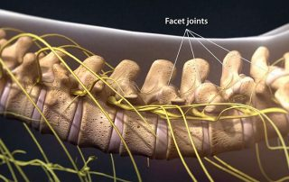 Facet Injections in Lakeland, Florida