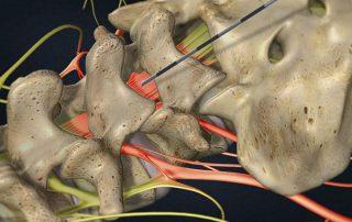 Lumbar Epidural Steroid Injection in Lakeland, Florida