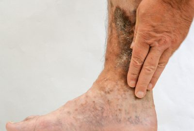Pain Treatment for Venous Ulcers in Lakeland, Florida
